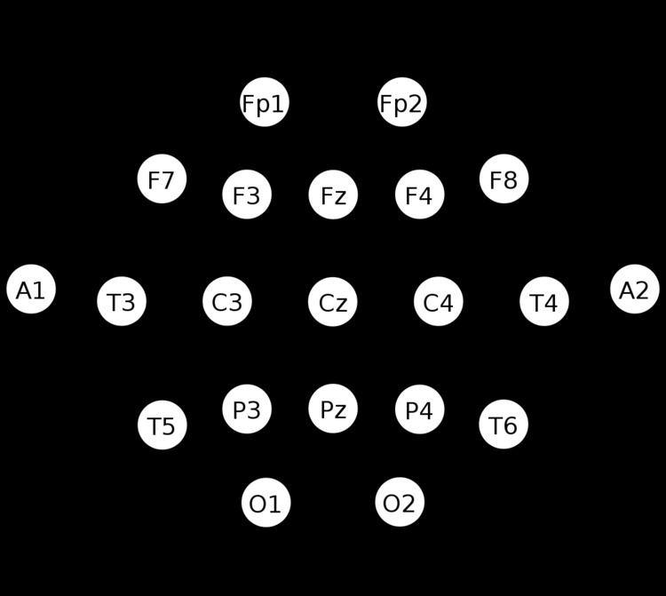 10-20 system (EEG)