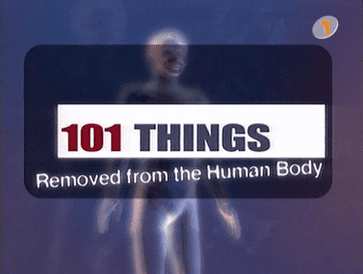 101 Things Removed from the Human Body 101 Things Removed from the Human Body Wikipedia