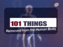 101 Things Removed from the Human Body httpsuploadwikimediaorgwikipediaenthumb2