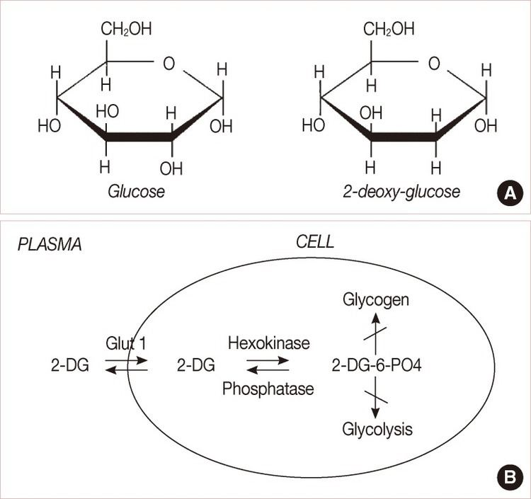 2-Deoxy-D-glucose A Structural comparison of glucose and 2deoxyDglucose 2DG 2