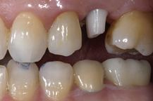 Abutment (dentistry)