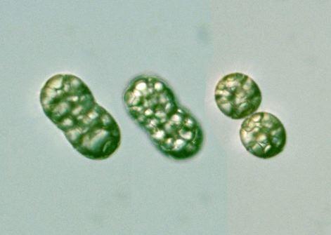 Achromatium Achromatium oxaliferum