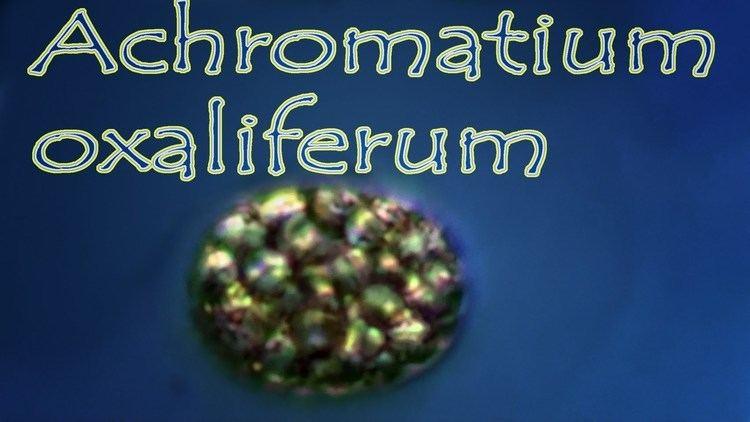 Achromatium Achromatium oxaliferum YouTube