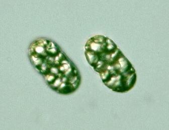 Achromatium protistihoseiacjppdbImagesProkaryotesProte