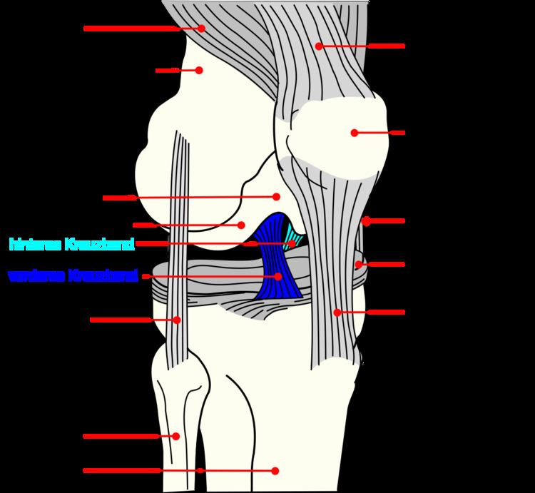 ACL injuries in the Australian Football League