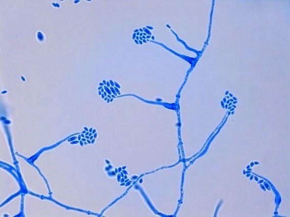 Acremonium Fun With Microbiology What39s Buggin39 You Acremonium species