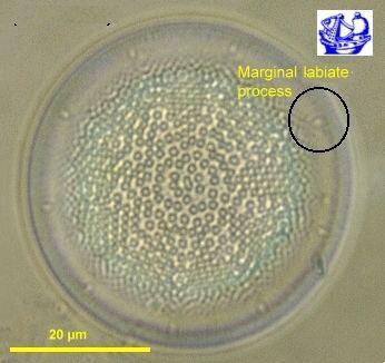 Actinocyclus httpsc1staticflickrcom1471068285639c04296
