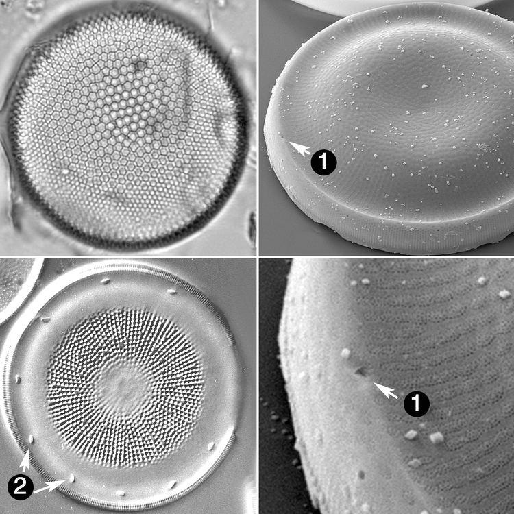 Actinocyclus Actinocyclus Diatoms of the United States