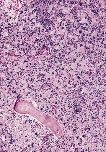 Acute megakaryoblastic leukemia
