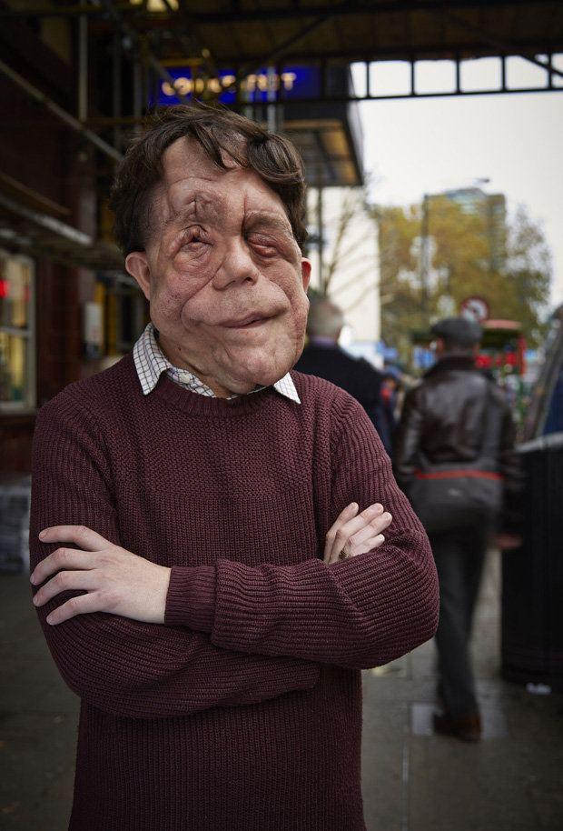 Adam Pearson (actor) Disfigured actor Adam Pearson told he quotshould have be