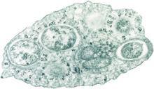 Alphaproteobacteria Alphaproteobacteria Wikipedia