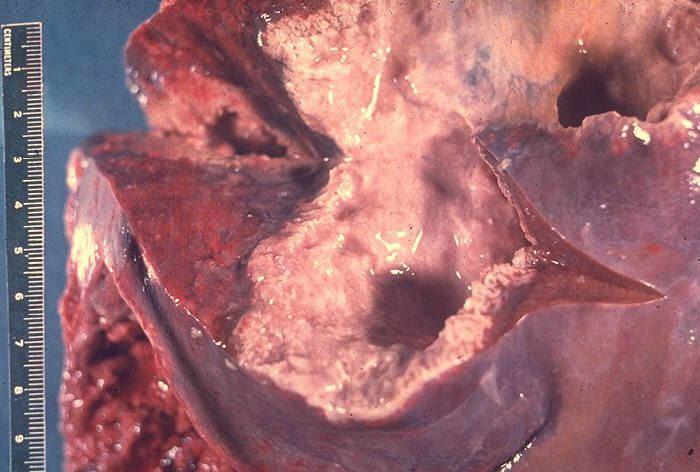 Amoebic liver abscess