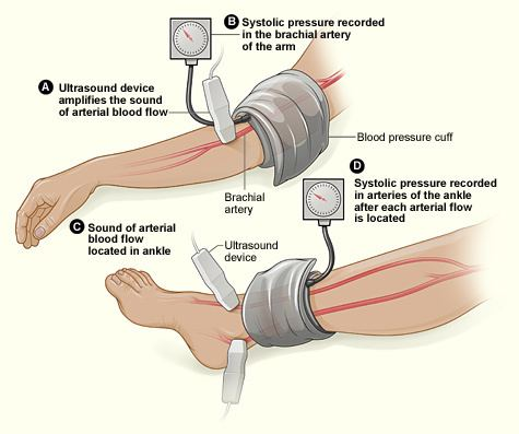 Ankle–brachial pressure index