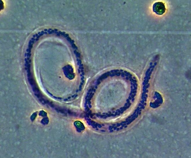 Aschelminth Z250 Lab 05 Aschelminth Study Images