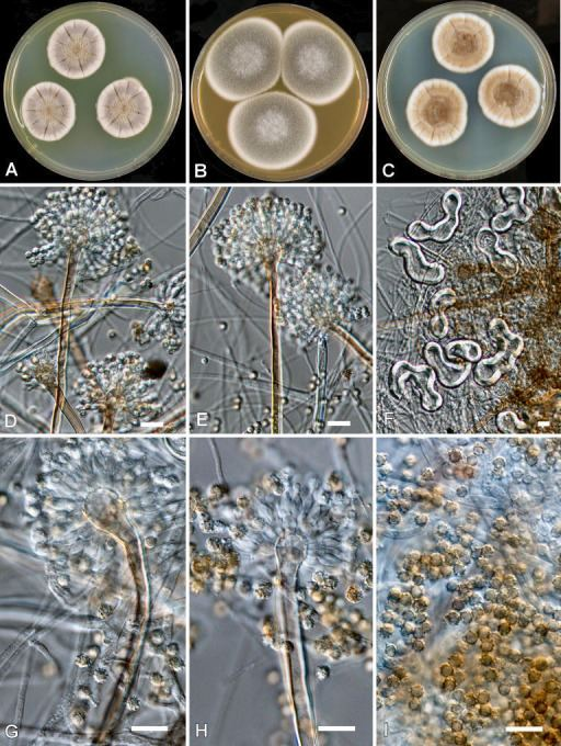 Aspergillus calidoustus Aspergillus calidoustus AB Colonies at 25 C after Openi