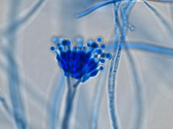 Aspergillus calidoustus Fun With Microbiology What39s Buggin39 You Aspergillus calidoustus
