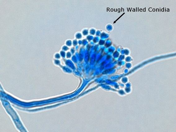 Aspergillus calidoustus Aspergillus Slide Labeled 20553 DFILES