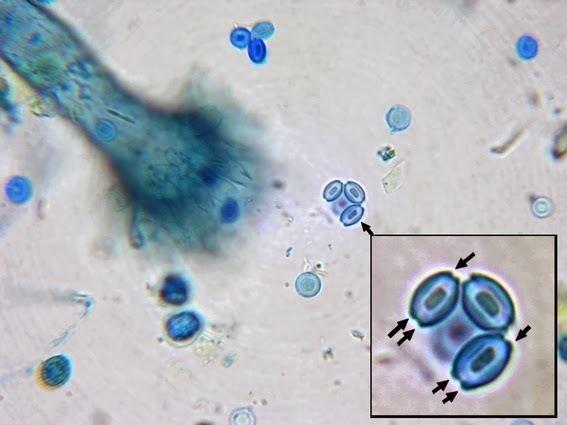Aspergillus glaucus Fun With Microbiology What39s Buggin39 You Eurotium herbariorum