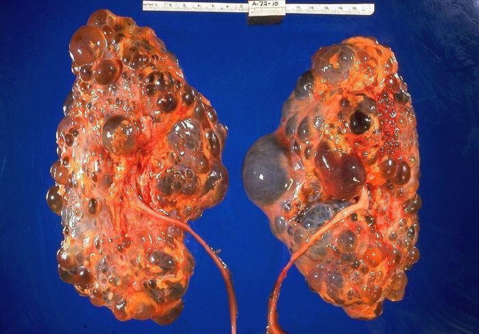 Чтобы окончательно понимать, можно ли проводить лечение рака почки народными средствами, необходимо уметь дифференцировать данный недуг, и определить причины его возникновения.