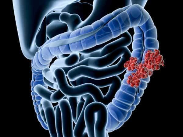 Bacillus fusiformis httpssrxafileswordpresscom201308coloncan