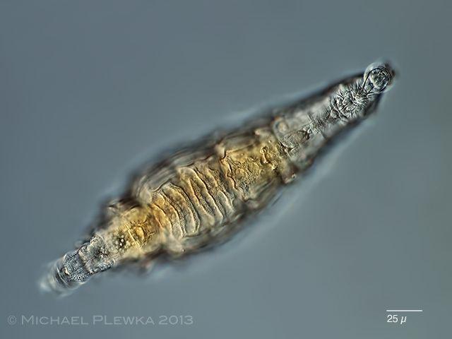 Bdelloidea - Alchetron, The Free Social Encyclopedia