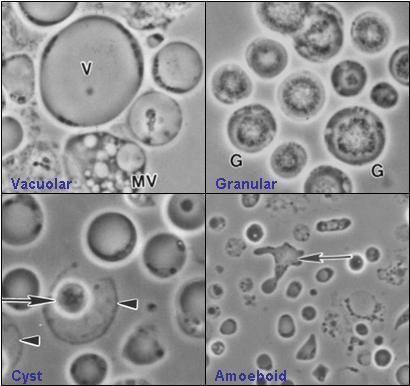 Blastocystis httpsuploadwikimediaorgwikipediacommonsbb