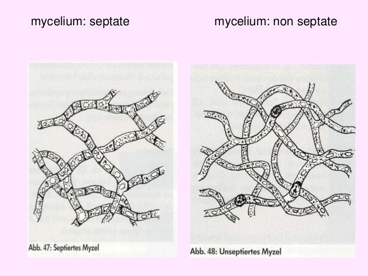 Blastospore httpsimageslidesharecdncomfungusi1209201111
