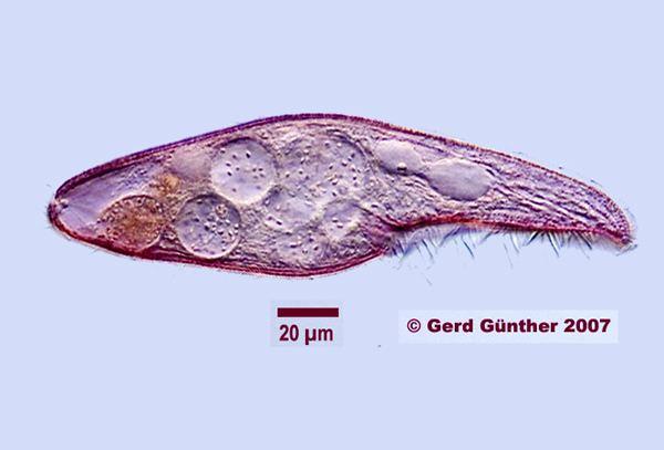 Blepharisma Phycokey Chilodonella images