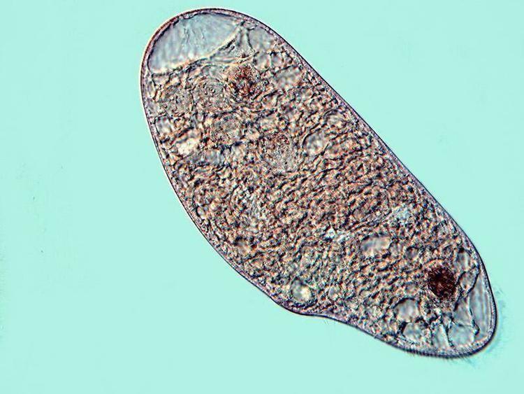 Blepharisma MicUK Two Marvelously Weird Ciliates Blepharisma and Climacostomum