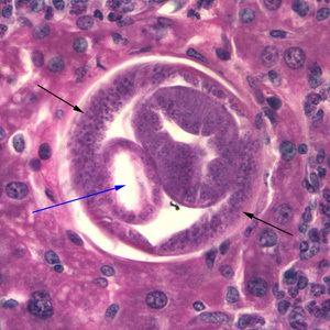Capillaria hepatica httpswwwcdcgovdpdxhepaticcapillariasisimag