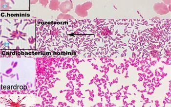 Cardiobacterium hominis Cardiobacterium hominis