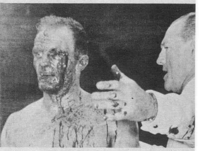 Carmine Vingo Carmine VingoHeavyweight boxerbest known for his career ending
