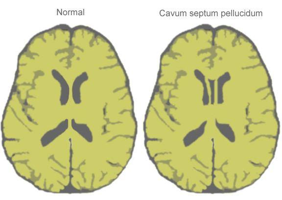 Cave of septum pellucidum
