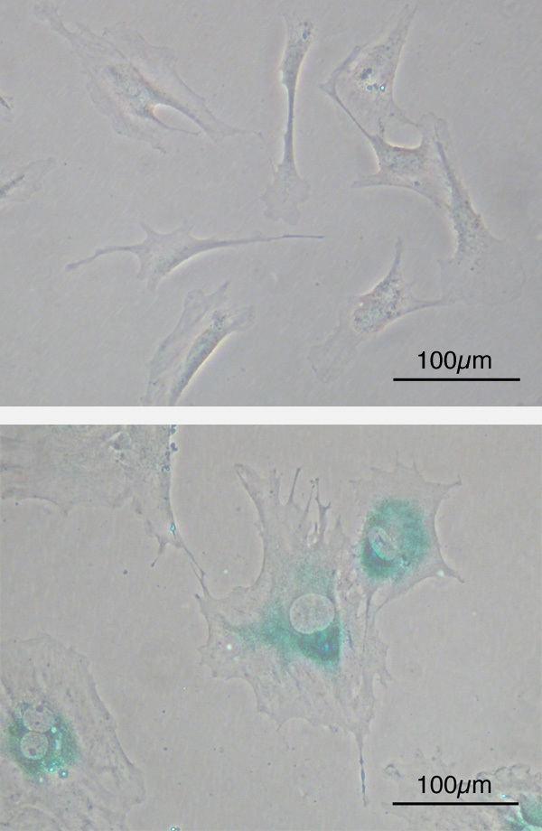Cellular senescence
