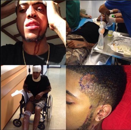 Chip rapper alchetron the free social encyclopedia chip rapper rapper chip forced to postpone release after quad bike crash the publicscrutiny Images