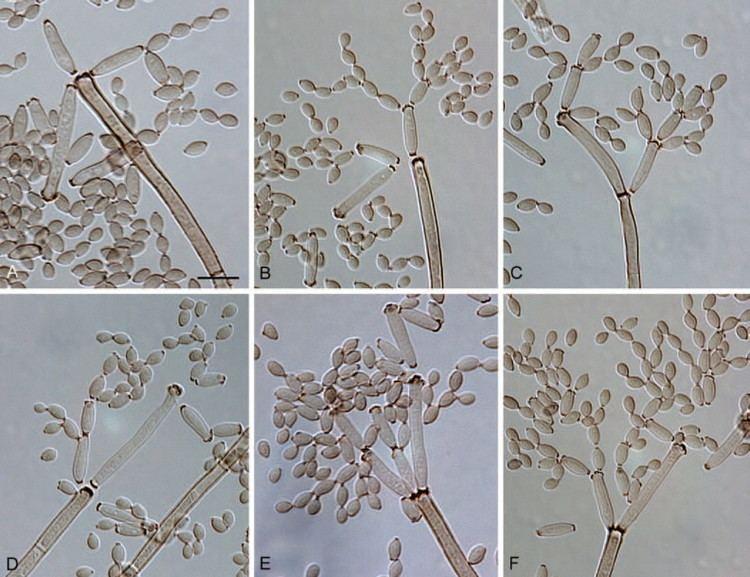 Cladosporium cladosporioides Cladosporium cladosporioides CBS 112388 AF Macronematous