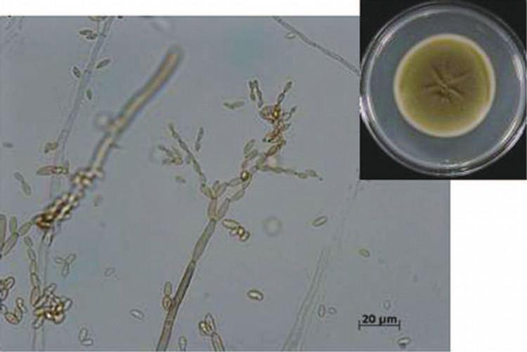 Cladosporium cladosporioides Cladosporium cladosporioides Cladosporium is a common fungus