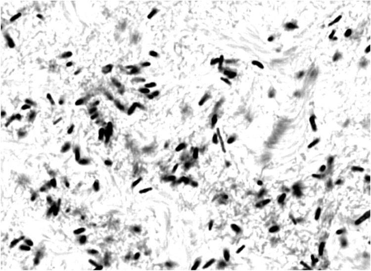 Clostridium septicum - Alchetron, The Free Social Encyclopedia
