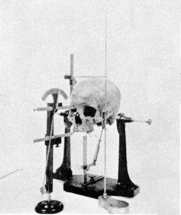 Craniometry