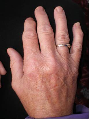 Crooked Fingers Hand Analysis Tip Crooked Fingers World of Hands