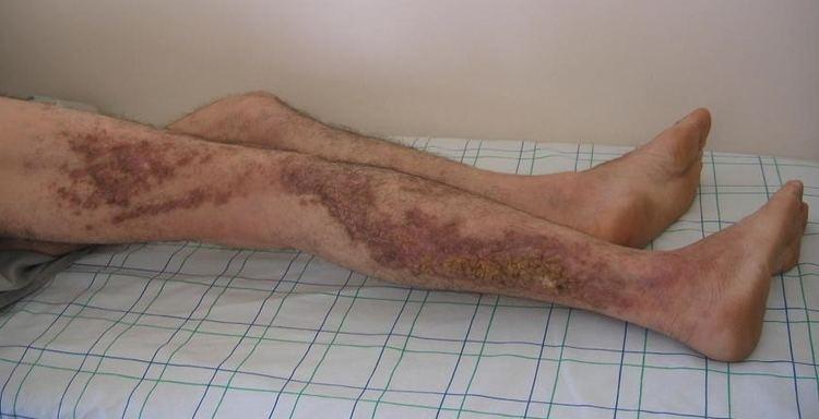 Darier's disease