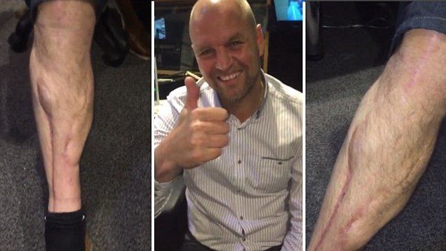 David Busst David Busst reveals astonishing scars from horror leg break against