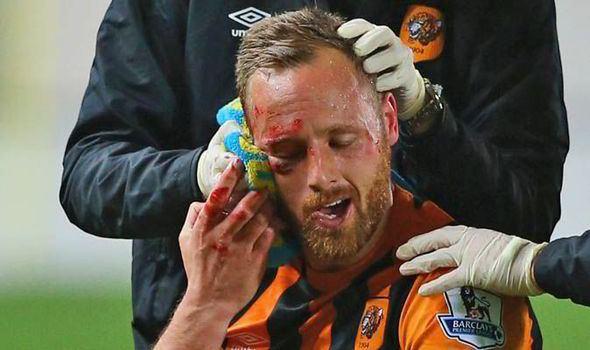 David Meyler David Meyler39s Instagram picture reveals facial injuries
