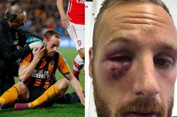David Meyler Hull midfielder David Meyler shows extent of gruesome eye