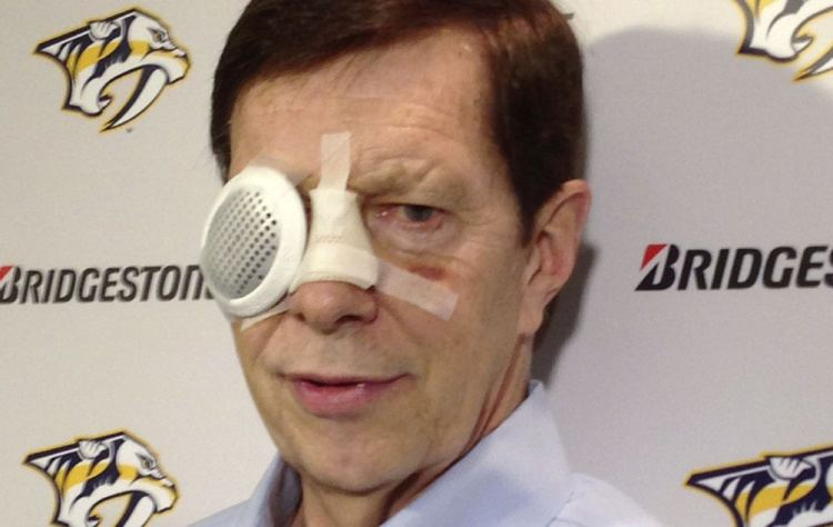David Poile Team USA Predators GM loses sight in his eye after getting hit by a