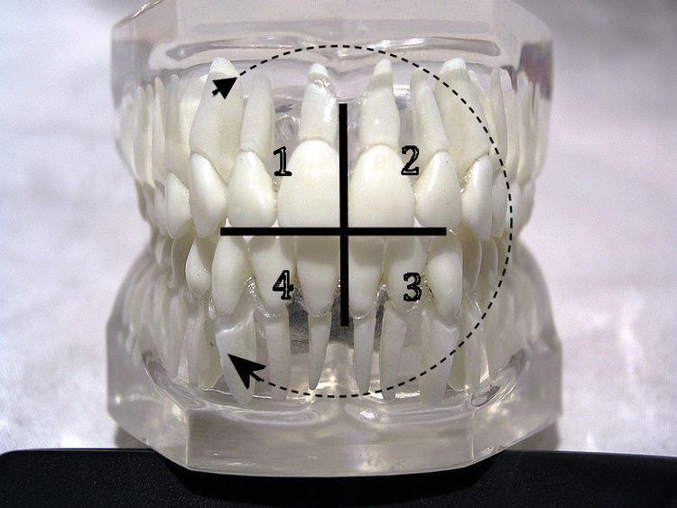 Dental notation