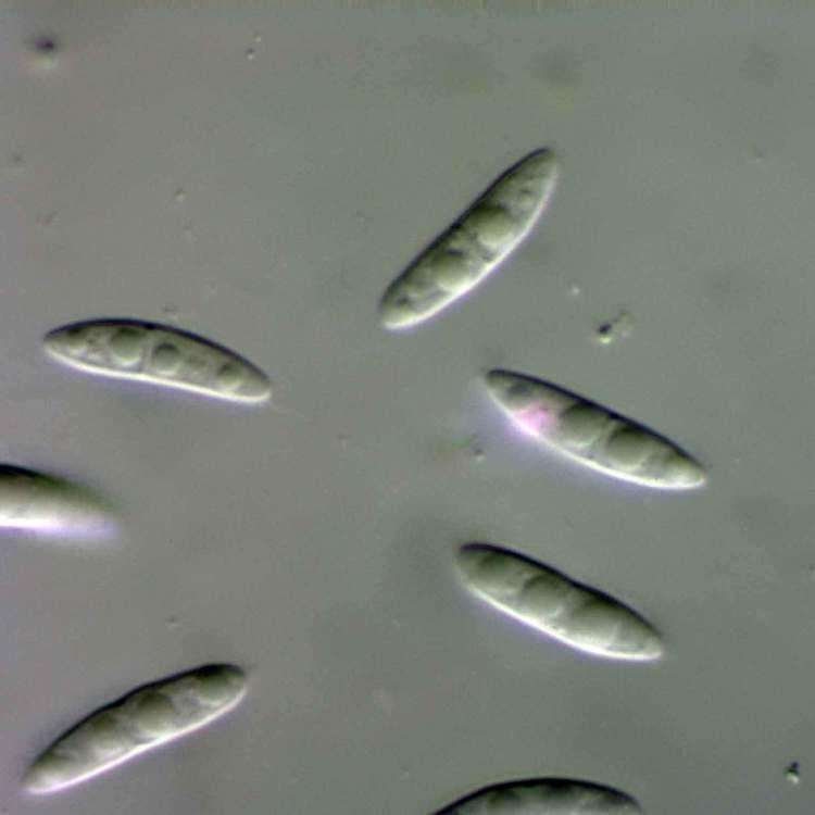 Diaporthe fungimyspeciesinfositesfungimyspeciesinfofi