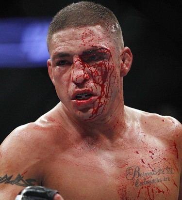 Diego Sanchez Diego Sanchez Archives MMA Convert RM Sports