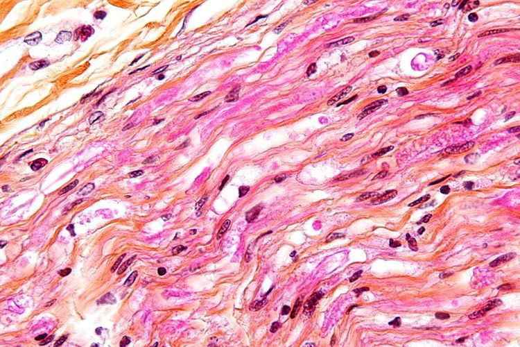 Digestion chambers