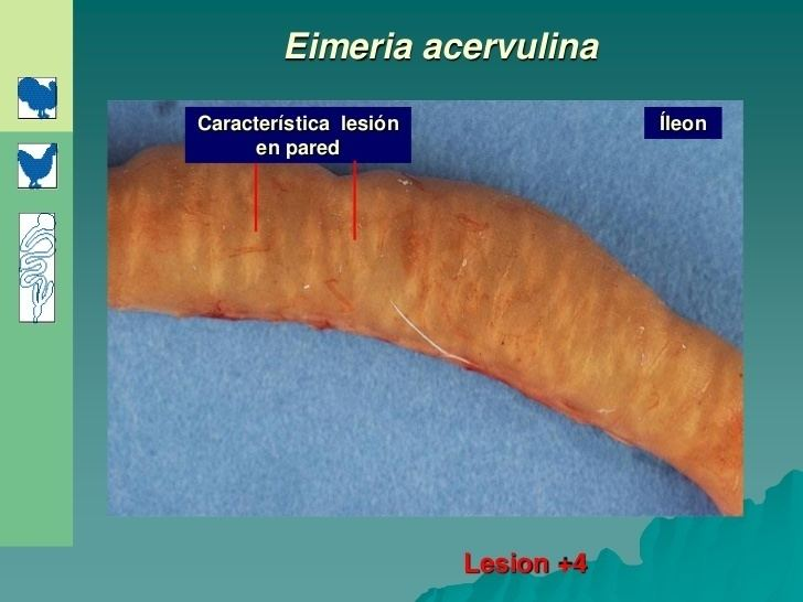 Eimeria acervulina httpsimageslidesharecdncomcoccidias20070910